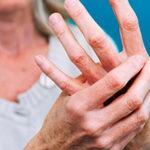 Причины артрита: психосоматика заболевания